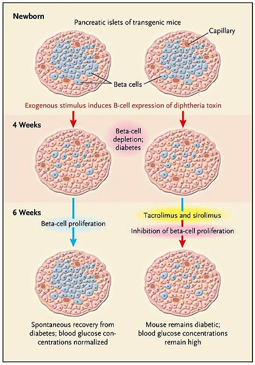 diabetes tipo 1 células pancreáticas