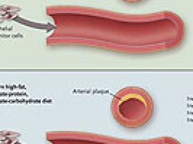 dieta de diabetes de células progenitoras endoteliales